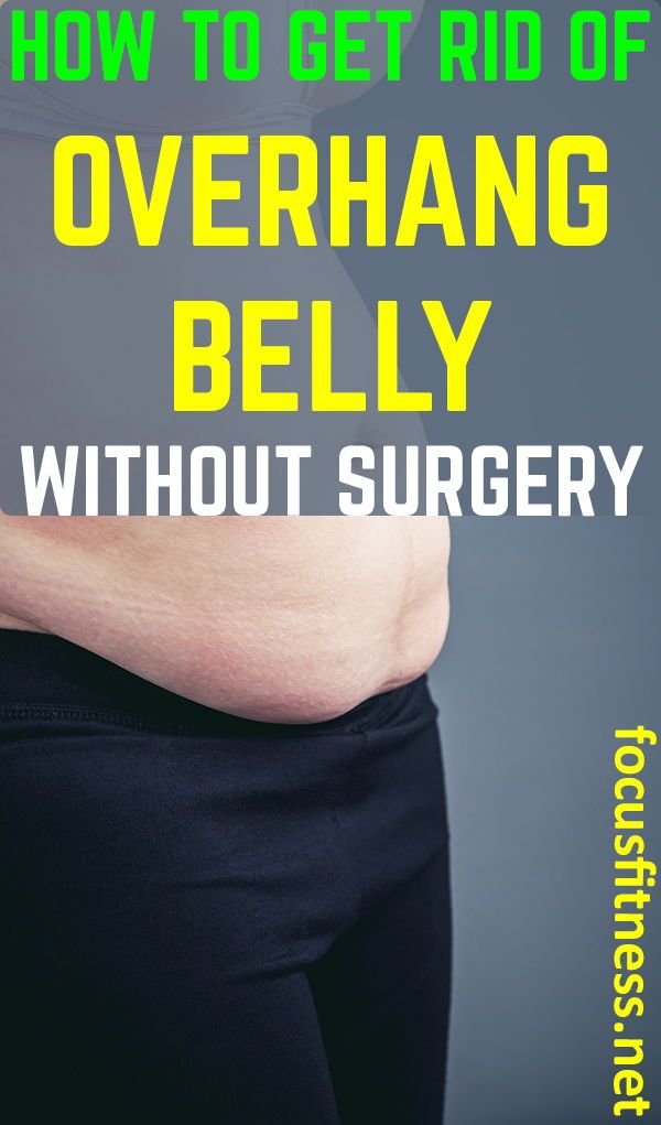 How To Get Rid Of A Over Hang Belly