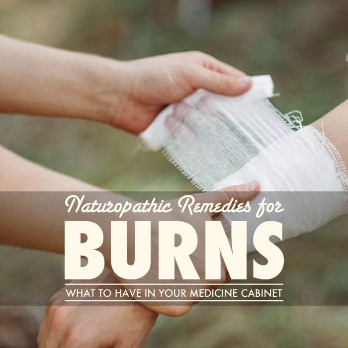 What Other Effective Ways Are There to Treat Burns? #naturopathic medicine  http://thenatpath.com/body/nature-cure/naturopathic-remedies-for-burns/?utm_content=buffer0db73&utm_medium=social&utm_source=pinterest.com&utm_campaign=buffer via@thenatpath