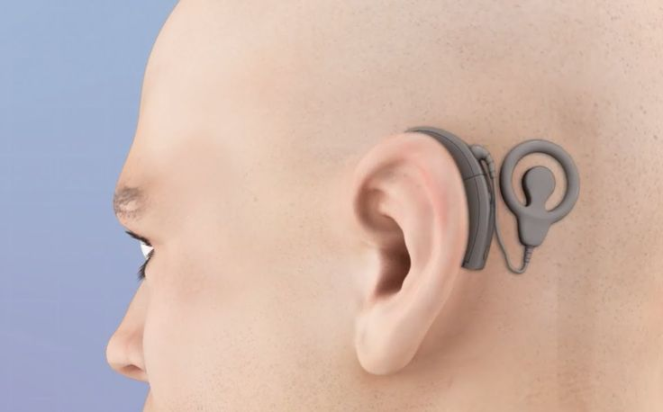 How a Cochlear Implant Surgery is Performed Video