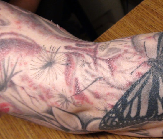 An outbreak of infected tattoos has led to an unlikely source: the ink.