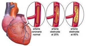 Back in my days when I was working in corporate america, I worked with an individual who suffered from angina. Let me tell you, it was very uncomfortable (no pun intended) for me to watch never mind what he was experiencing. So lets take a look and discuss! #blog #health #fitness #angina #weight #loss #obesity  #cholesterol #stress #diabetes #type1 #type2 #atherosclerosis #workout