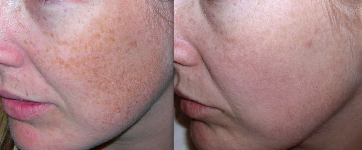 IPL Photorejuvenation treatment is the perfect option for fading freckles and sun damage. Resulting in a fresh, evenly coloured skin tone. https://cosmedicalskinsolutions.com.au/treatments/skin-rejuvenation/ipl-photo-rejuvenation/