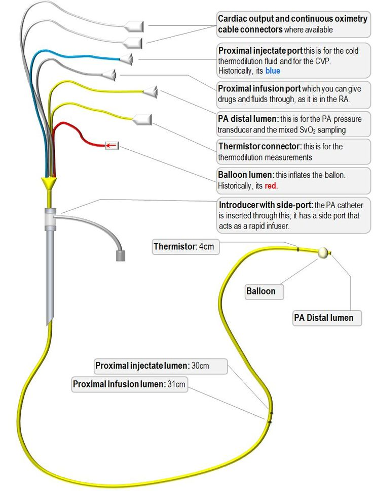 edwards swan ganz pulmonary artery catheter proximal port - Google Search