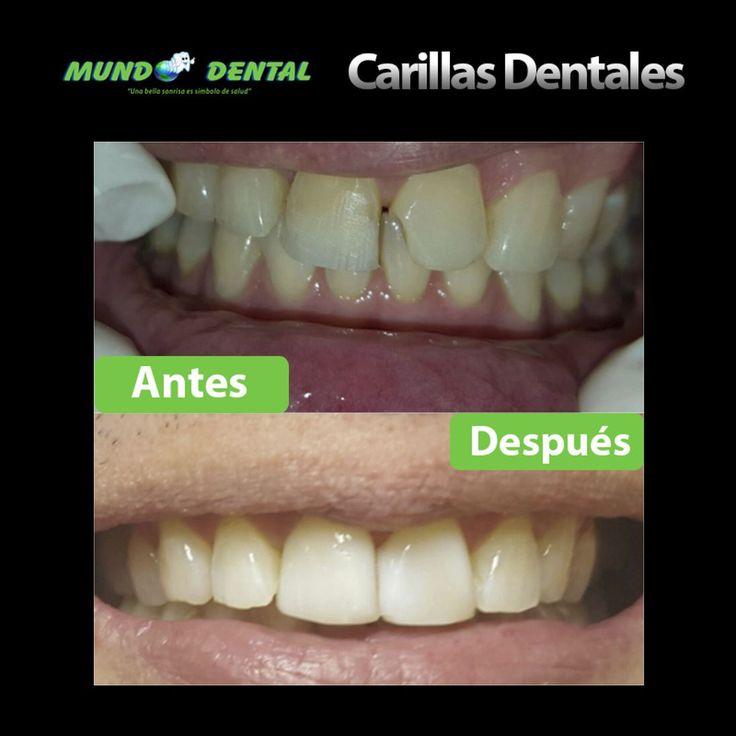Las carillas dentales pueden cambiar totalmente tu sonrisa! . #MundoDentalPty #Smile #Carillas #Estetica #Panama #Pty #Odontologia #CosasDeOdontologos