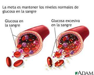 Diabetes: Diabetes Mellitus