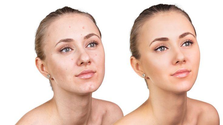 Scacă complet și definitiv de acnee cu o singură soluție naturală care face minuni. Efectele se văd în două săptămâni, iar pielea ta va radia de frumusețe.