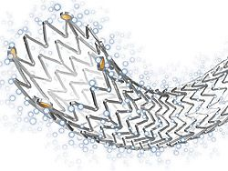 Research Beam: Global Drug-Eluting Stent Market 2016-2020