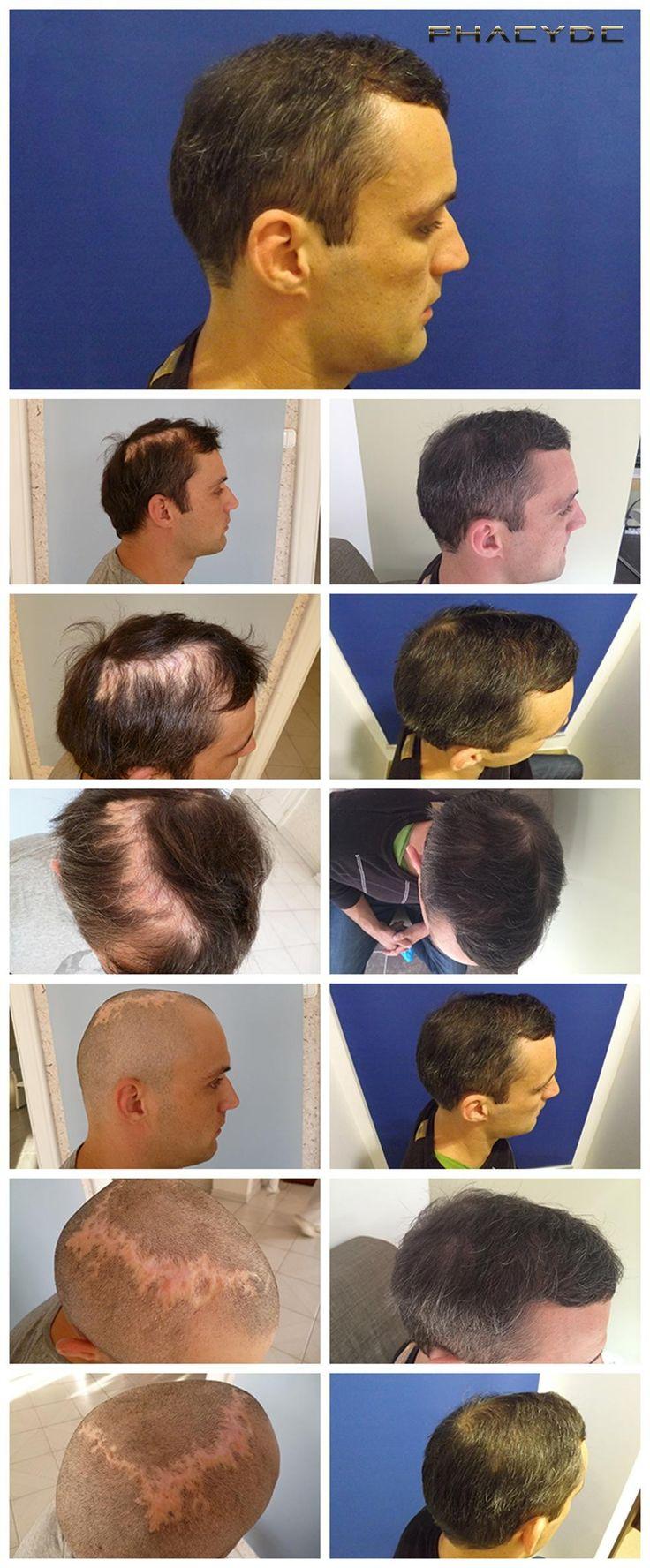 Transplante de cabelo em tecido cicatricial - PHAEYDE Clínica  Peter perdeu uma parte de seu cabelo devido ao fogo em sua infância. O tratamento de transplante de cabelo foi feito pela clínica PHAEYDE em Budapeste, Hungary.5000+ cabelos foram implantados durante as 12 horas restauração de cabelo comprido.  http://pt.phaeyde.com/transplante-de-cabelo