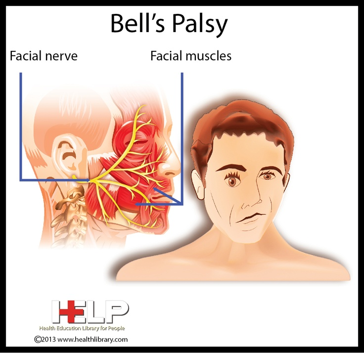 other pinner said: i've had bells palsy. stress is the cause, Human Body