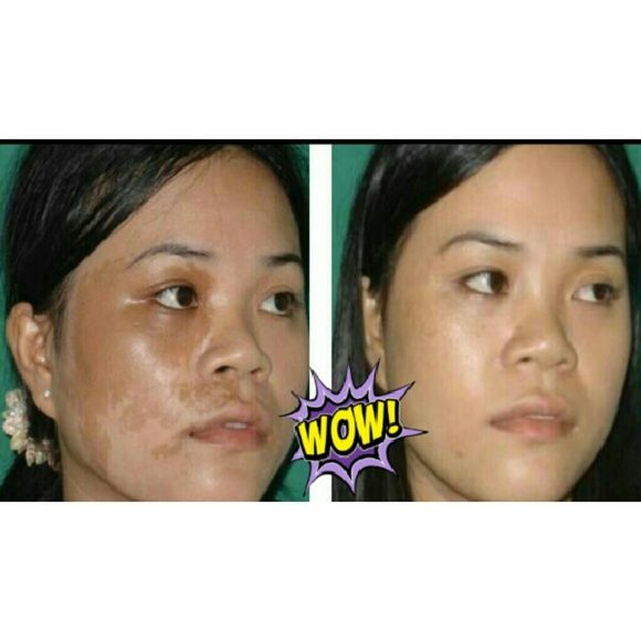 7 DAY RESULTS ACNE SCAR & DARK SPOT REMOVAL CREAM ACNE SCAR & DARK SPOT REMOVAL CREAM  30% Grade  2 OZ. JAR?  Completely erases dark underarm, groin area and old scars while removing dead skin cells.?  Most customers begin to see results within 1 week!  High quality skin lightening bleaching ingredients have been carefully blended and formulated with potent ingredients and multivitamin.  Boost skin clarity and tone.  Protect against oxidative damage ,moisture loss and make your skin even…
