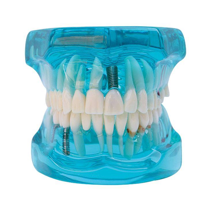 치과 임플란트 모델 함께 복원 보여주는 일부 처리 방법: 임플란트, 메릴랜드 고정 다리, 상감.