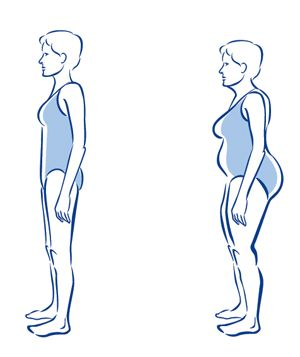 """""""Sway Back/Hip-Strengthening Exercises"""" - my personal trainer told me to do these."""