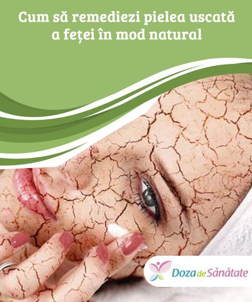 Cum să remediezi pielea uscată a feței în mod natural  Te-ai săturat să ai pielea uscată tot timpul? Nu ezita să încerci următoarele remedii naturiste!