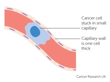 33 best ingeniera gentica images on pinterest school ap diagram showing a cancer cell stuck in a small blood vessel capillary ccuart Gallery
