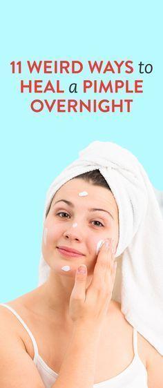 11 Weird Ways To Heal A Pimple Overnight #acnetips…