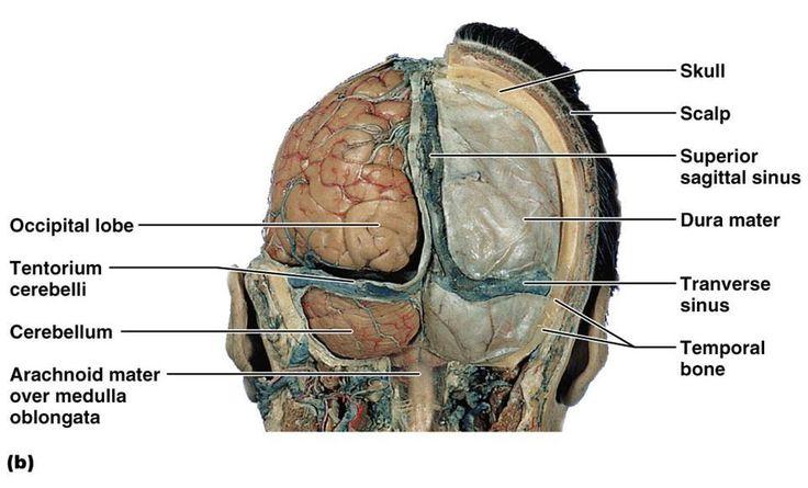 22 Best Cerebellum Images By Shanon Sloves On Pinterest Med School