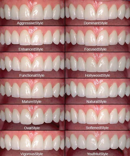 Dentaltown - Want to change the appearance of one or more teeth? Veneers are thin shells of porcelain that cover the front side of your teeth that can drastically improve the appearance of stained or misshaped teeth. They're as thin as a contact lens, no thicker than your thumbnail, but don't let their dainty size fool you – they make a huge difference.