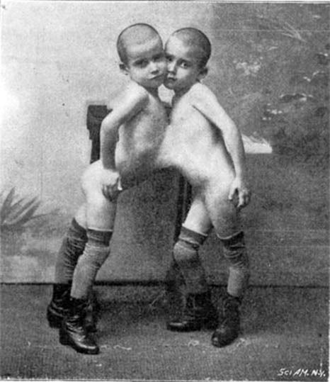 Conjoined adult twins and pennsylvania