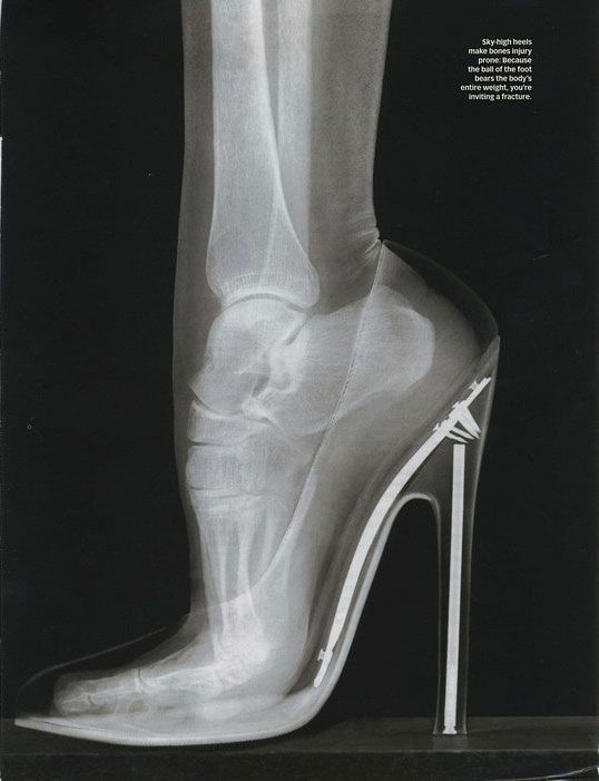 I was just talking about this!  Take it from a dancer: If you're going to wear heels, at least wear them high enough to put your shin, ankle, and foot bones in straight alignment, taking advantage of the linear strength.  Any shorter heel puts the force of your weight on the arch and the corners of the bone ends, causing more pain, sliding (shear pain for the flesh) and instability |  health & beauty
