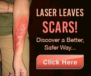 Best 25 tattoo removal cost ideas on pinterest for How effective is tattoo removal cream