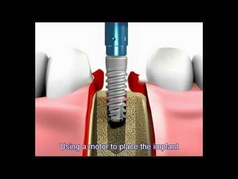 Dental Implant Center Miami   Dental Implants Dr Nadel in Miami   Implants in Miami, FL