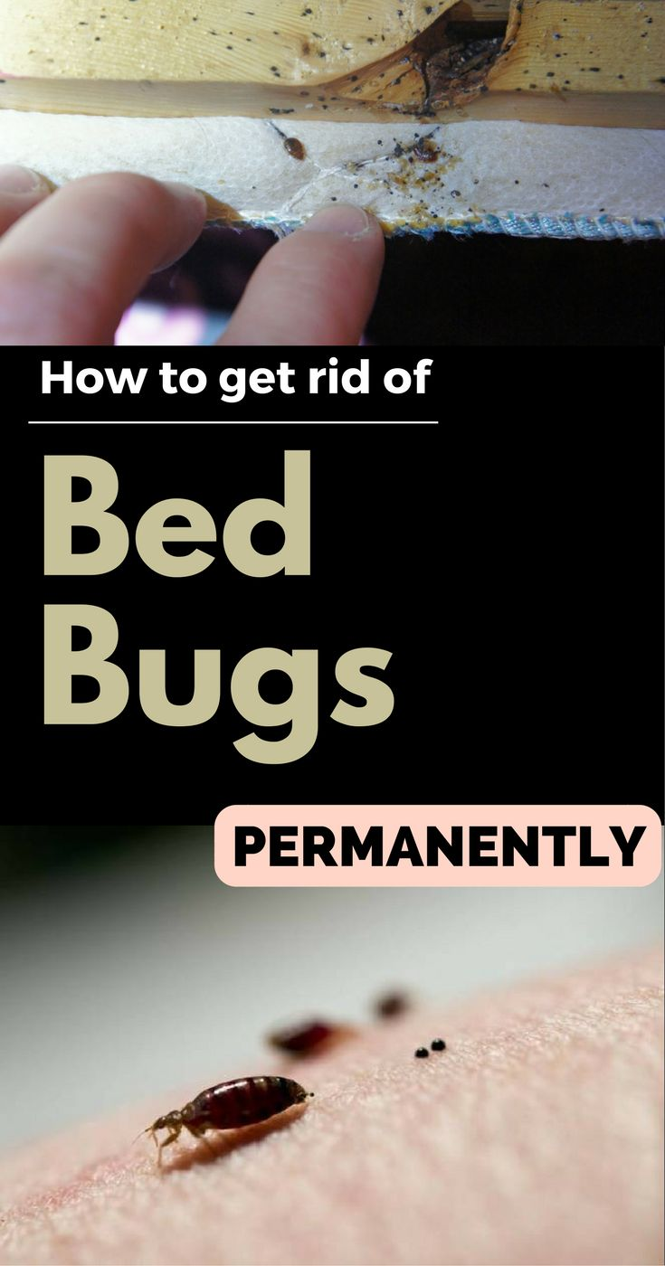 How To Get Rid Of Sewer Smell In Your House: How To Get Rid Of Bed Bugs Permanently