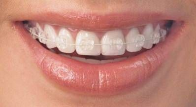 Invisible Braces cost varies on a case-by-case basis, depending upon your private needs, and must be gone over with your dental practitioner.