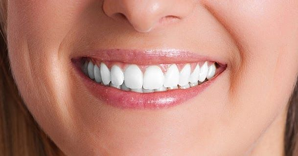Why dental implants are becoming a fashion trend? #DentalImplantsMelbourne