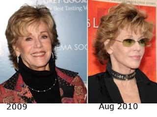Chatter Busy: Jane Fonda Plastic Surgery Photos