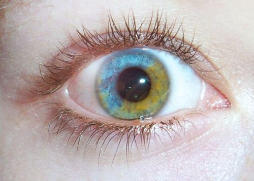 Heterochromia Iridum (Sectorial Heterochromia) Difference in coloration of the eye iris.