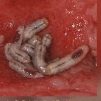 Rimarrai stupito di vedere i parassiti uscire dal tuo corpo se nel tè metti…