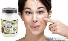 Com a pele limpa, aplique uma fina camada de óleo em seu rosto e em seguida, massageie suavemente. Deixe agir cerca de 20 minutos, de modo que possa ser absorvido pela pele. Em seguida, lave o rosto novamente para remover o excesso de óleo. Além de desobstruir e purificar os poros e eliminar os resíduos de produtos da pele, o óleo de coco ainda ajuda a diminuir as cicatrizes e manchas deixadas pelas espinhas e acne.