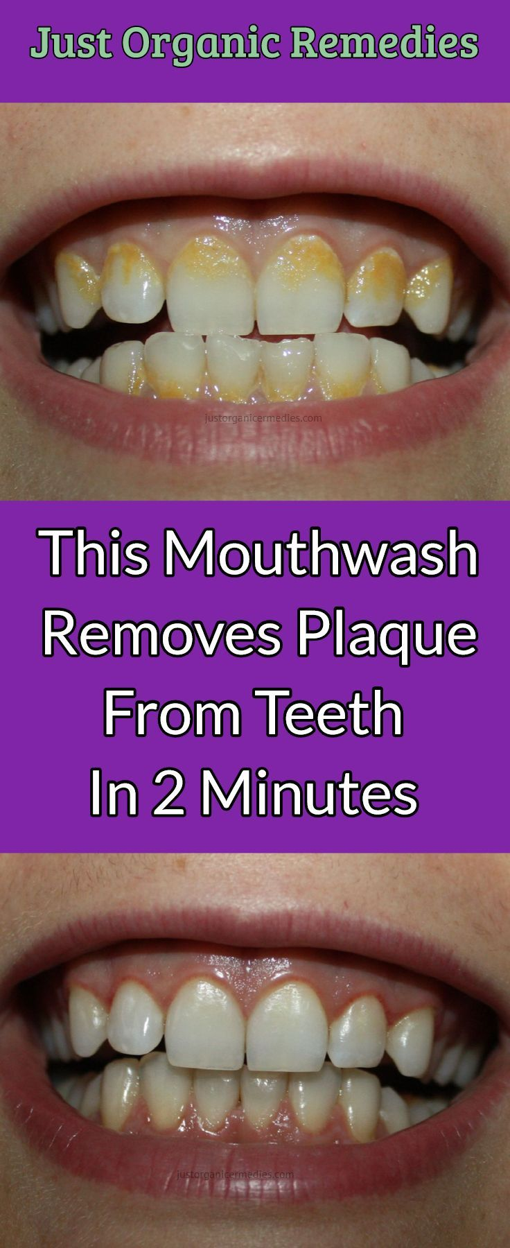 It reduces the presence of plaque, while reaching and fighting bacteria that escaped dental cleaning at the same time. It is actually the final step in the removal of bacteria and germs. Moreover, it leaves the mouth clean and the breath fresh.  #mouthwash #BakingSoda #Salt #HydrogenPeroxide