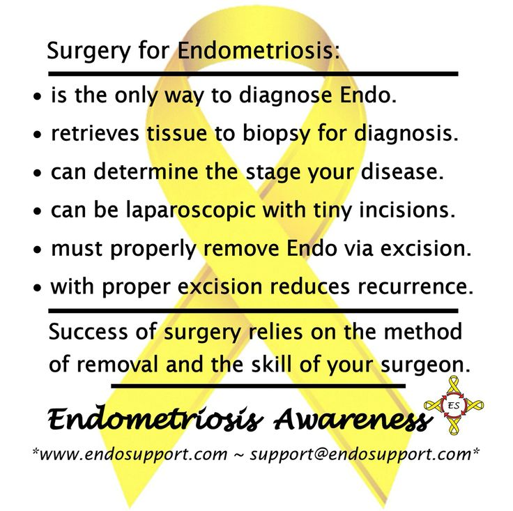 Surgery for Endometriosis: • Surgery for Endometriosis is the only way to diagnose Endo. • Surgery for Endometriosis retrieves tissue to biopsy for diagnosis. • Surgery for Endometriosis can determine the stage your disease. • Surgery for Endometriosis can be laparoscopic with tiny incisions. • Surgery for Endometriosis must properly remove Endo via excision.  • Surgery for Endometriosis with proper excision reduces recurrence. Success of surgery relies on the method of removal and the skill…