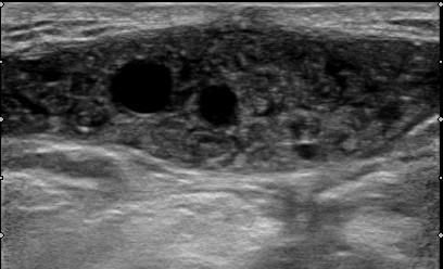 Ultrasound scan of a CE3b subcutaneous cyst located in the lumbar area. The cyst was the subcutaneous extension of a cyst located in the spine that had been previously operated on.