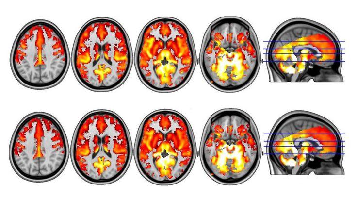 Al catálogo de fármacos que actualmente se diagnostican para tratar la depresión pronto podría unirse una sustancia muy peculiar y de la que aún sabemos poco: la psilocibina. El principio activo de las setas alucinógenas acaba de demostrar ser capaz de reiniciar el cerebro de pacientes con depresión.