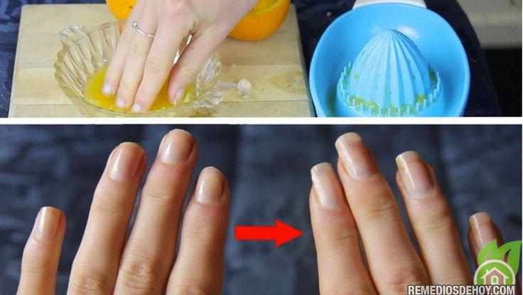 He estado tratando de hacer crecer las uñas durante meses, meses y meses, y cada vez me siento...
