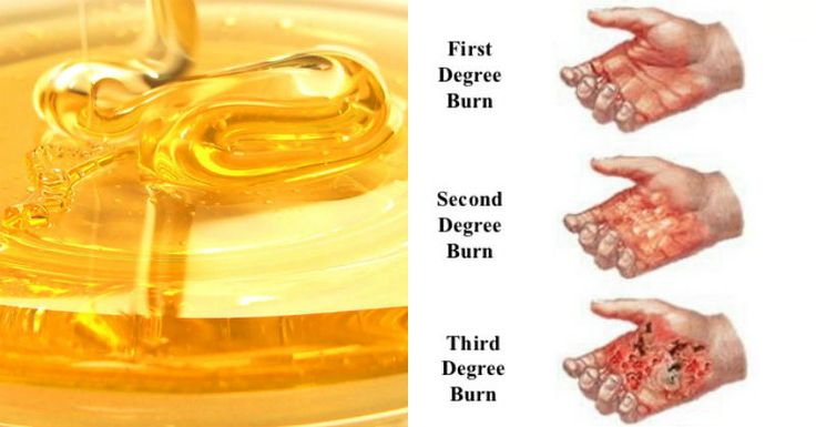 Never Ever Ice a Burn! Try These Home Remedies For Minor Burns Instead