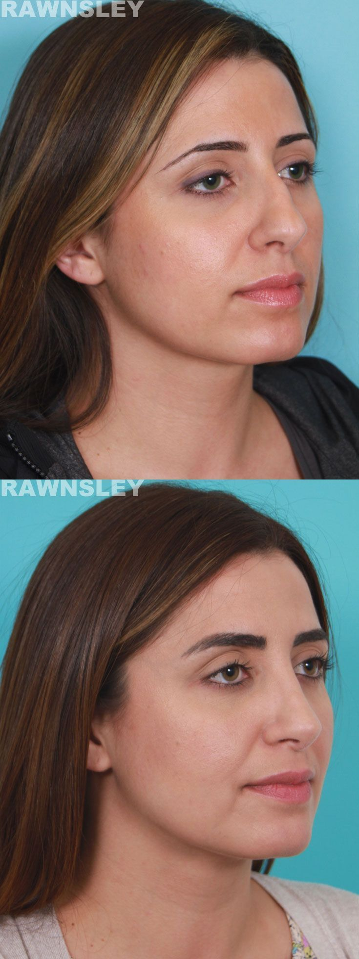 #rhinoplasty #rawnsley #plastic #surgery #before