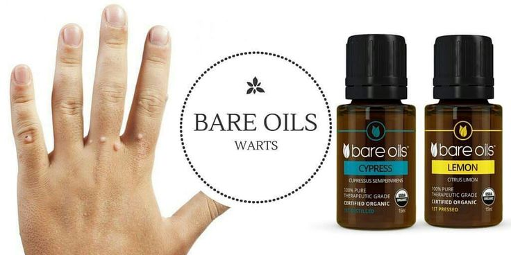 No More Warts Warts seem like the stuff of fairy tales until one appears on your hand,foot, or face. being. To eradicate one in short order,use an antiviral essential oil applied directly to the site. Antiviral Blend 1 drop Organic Bare Oils Cypress essential oil 1 drop Organic Bare Oils Lemon essential oil Apply 1 drop of each undiluted essential oil on the wart 2 times a day until the wart shrinks. www.bareoils.com.au/terrimichellesmassage
