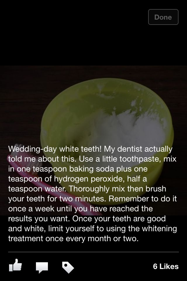 How to get white teeth I must do this but I've also seen on Pinterest the hydrogen whatever is bad for your teeth so just do baking soda