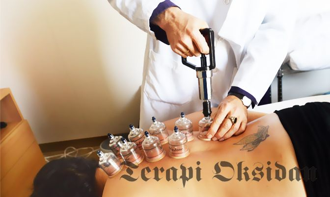 Cupping Therapy Alleviates Carpal Tunnel Syndrome