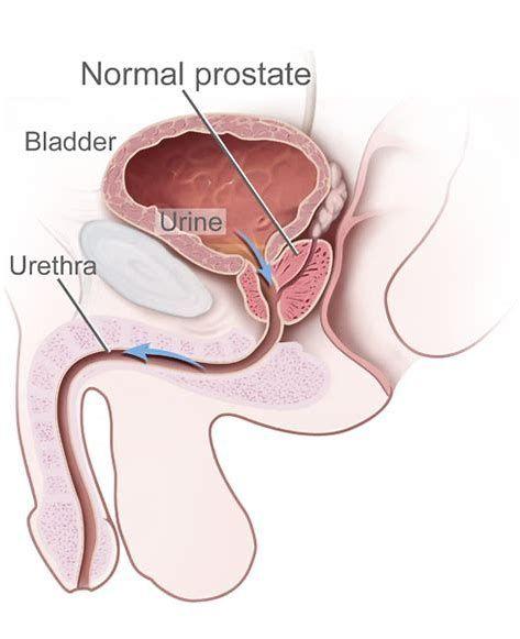 Image result for Prostate Massage for Ed