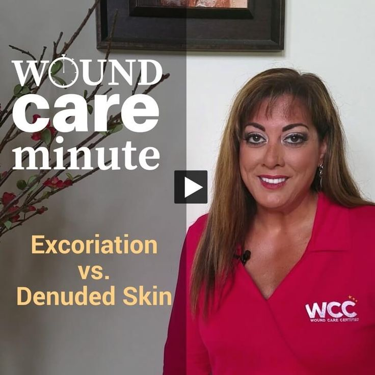 What's the Difference Between Excoriation and Denuded Skin? WCEI co-founder Nancy Morgan discusses these often-confused wound care terms. via @woundcareeducat