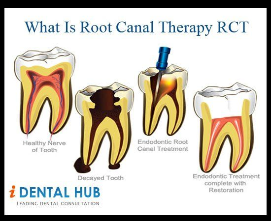 All information about Root Canal Tratment, Root Canal Pain, What problems can arise if root canal cannot be treated.