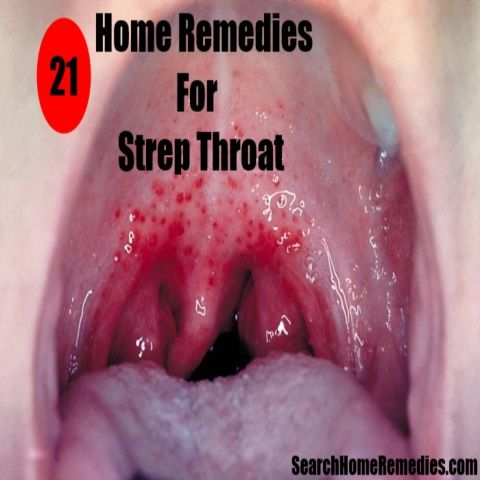 Home Remedies For Strep Throat