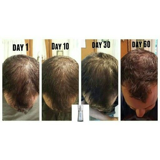 #hairloss ?? fix it with our #Luminesce SERUM