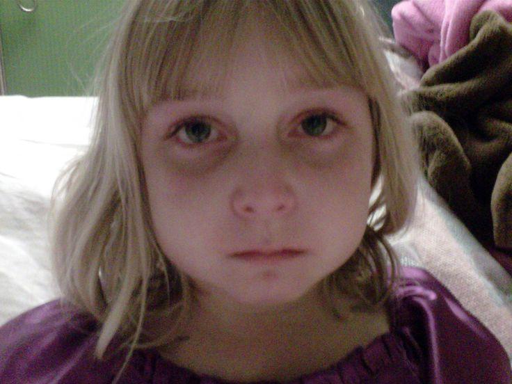 Write a 1000 word essay on Juvenile Arthritis?