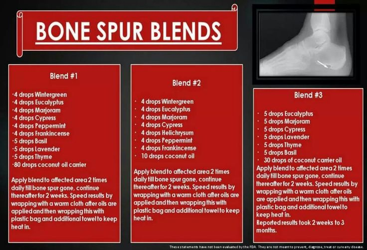 Cure Bone spurs with essential oils