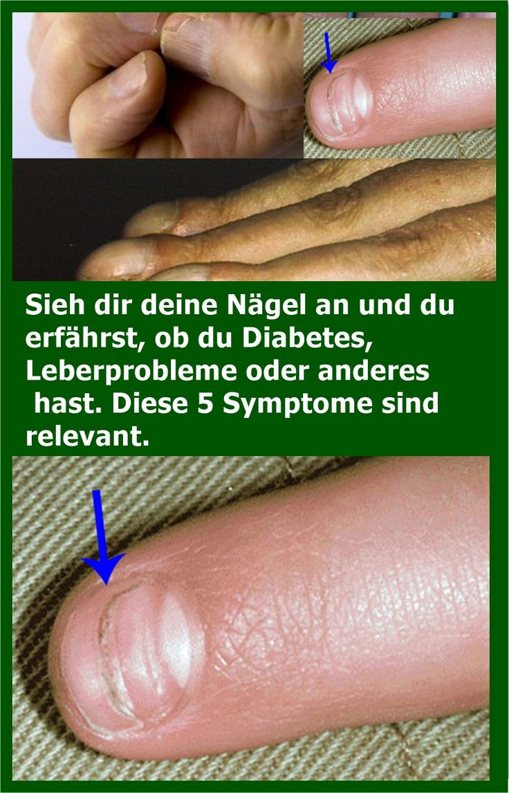 Sieh dir deine Nägel an und du erfährst, ob du Diabetes, Leberprobleme oder an…